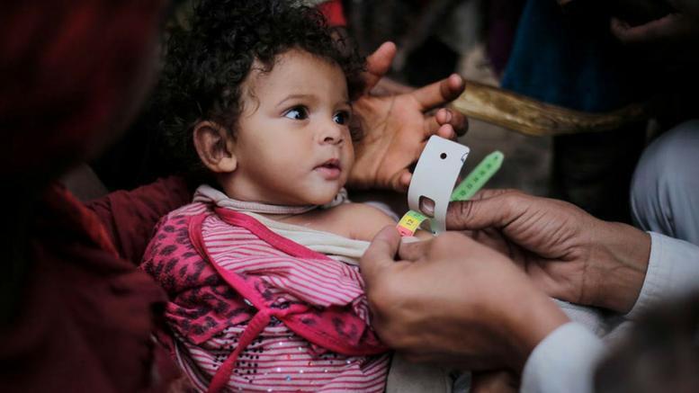 Παιδί που πάσχει από οξύ υποσιτισμό εξετάζεται από γιατρό στο Bani Al-Harith, Sana'a, στην Υεμένη. Φωτογραφία: UNICEF/Almang